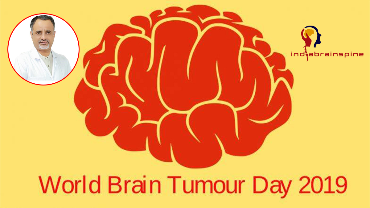Know About Brain Tumors - 1
