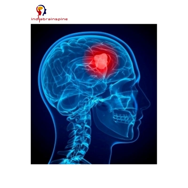 Know About Brain Tumors - 2